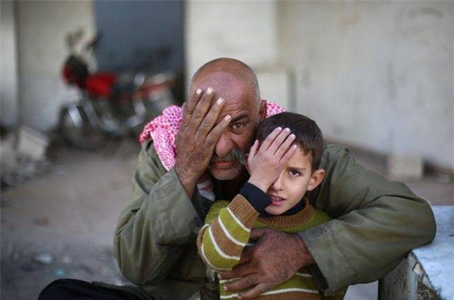 Syria: Xót thương bé 3 tháng tuổi chỉ còn một mắt - Ảnh 9.