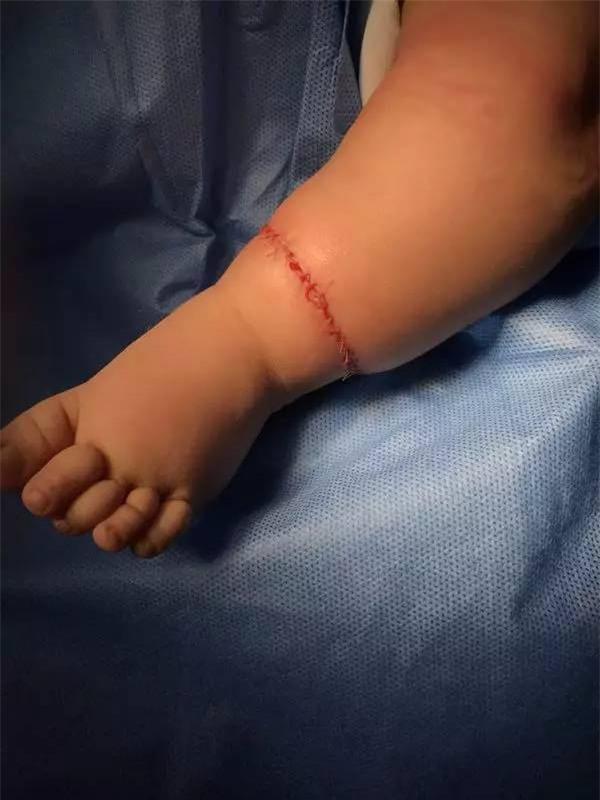 Con mới sinh tay chân đã có nhiều ngấn, bố toát mồ hôi khi bác sĩ nói để muộn phải cắt bỏ - Ảnh 7.