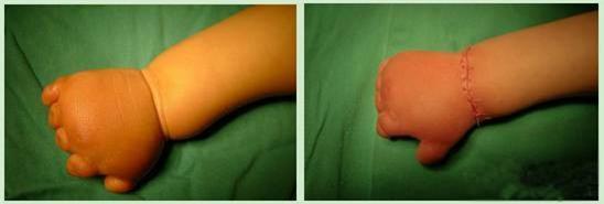 Con mới sinh tay chân đã có nhiều ngấn, bố toát mồ hôi khi bác sĩ nói để muộn phải cắt bỏ - Ảnh 8.