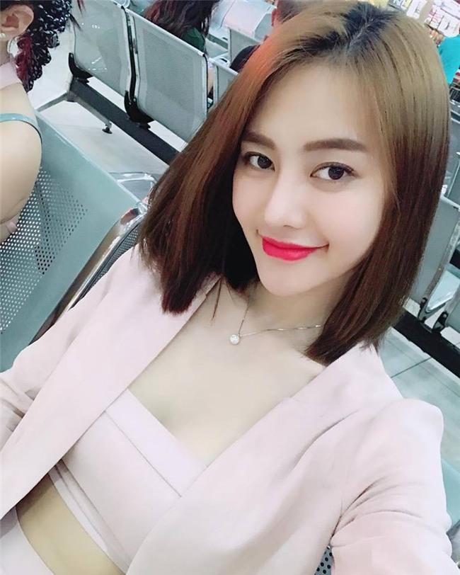 Đăng ảnh mắt sưng húp, Linh Chi vướng nghi vấn phẫu thuật thẩm mỹ - Ảnh 3.