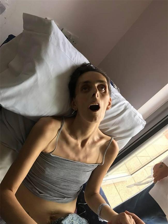 Chồng đau đớn chia sẻ bức ảnh gây sốc của vợ trên giường bệnh và lời cảnh báo mà bạn không nên bỏ qua - Ảnh 2.