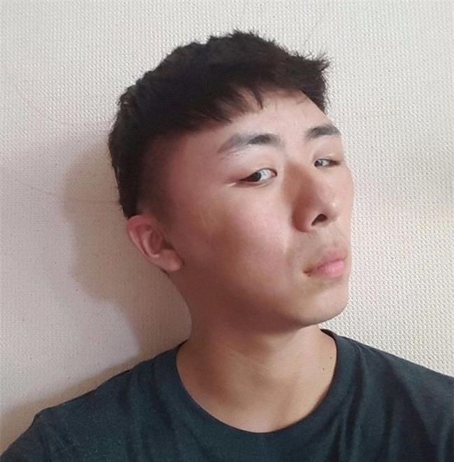 Chết cười với anh chàng Hàn Quốc bị dị ứng thuốc nhuộm tóc, đầu sưng to như quả bóng bay - Ảnh 10.
