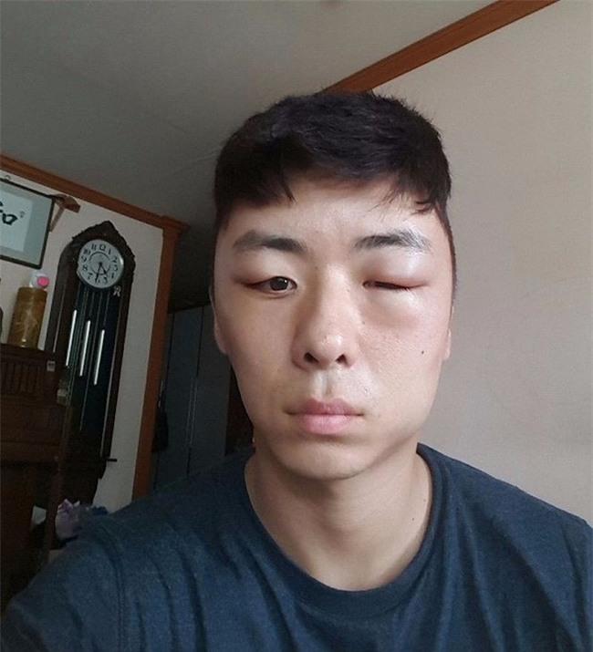 Chết cười với anh chàng Hàn Quốc bị dị ứng thuốc nhuộm tóc, đầu sưng to như quả bóng bay - Ảnh 11.