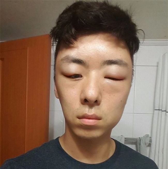 Chết cười với anh chàng Hàn Quốc bị dị ứng thuốc nhuộm tóc, đầu sưng to như quả bóng bay - Ảnh 12.