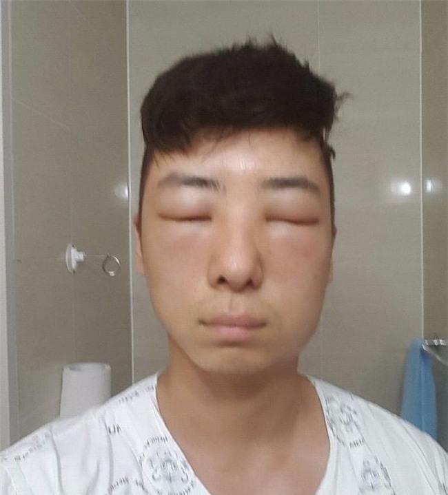 Chết cười với anh chàng Hàn Quốc bị dị ứng thuốc nhuộm tóc, đầu sưng to như quả bóng bay - Ảnh 13.