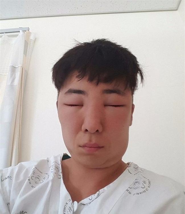 Chết cười với anh chàng Hàn Quốc bị dị ứng thuốc nhuộm tóc, đầu sưng to như quả bóng bay - Ảnh 14.