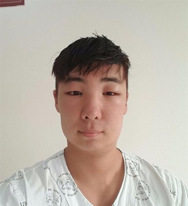 Chết cười với anh chàng Hàn Quốc bị dị ứng thuốc nhuộm tóc, đầu sưng to như quả bóng bay - Ảnh 17.