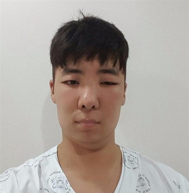 Chết cười với anh chàng Hàn Quốc bị dị ứng thuốc nhuộm tóc, đầu sưng to như quả bóng bay - Ảnh 18.