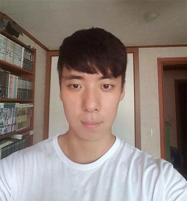 Chết cười với anh chàng Hàn Quốc bị dị ứng thuốc nhuộm tóc, đầu sưng to như quả bóng bay - Ảnh 21.