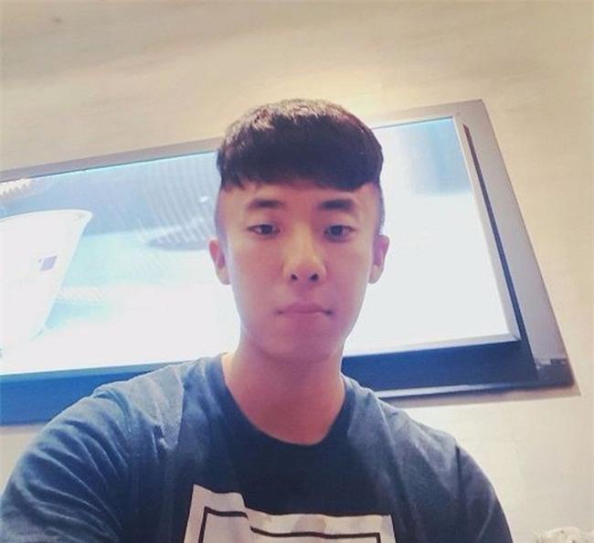 Chết cười với anh chàng Hàn Quốc bị dị ứng thuốc nhuộm tóc, đầu sưng to như quả bóng bay - Ảnh 3.