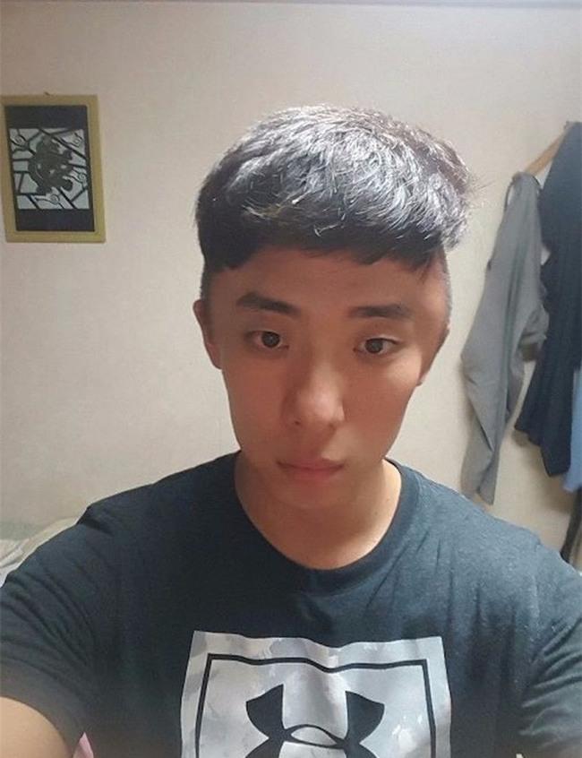 Chết cười với anh chàng Hàn Quốc bị dị ứng thuốc nhuộm tóc, đầu sưng to như quả bóng bay - Ảnh 4.