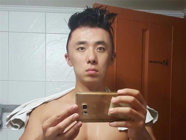 Chết cười với anh chàng Hàn Quốc bị dị ứng thuốc nhuộm tóc, đầu sưng to như quả bóng bay - Ảnh 5.