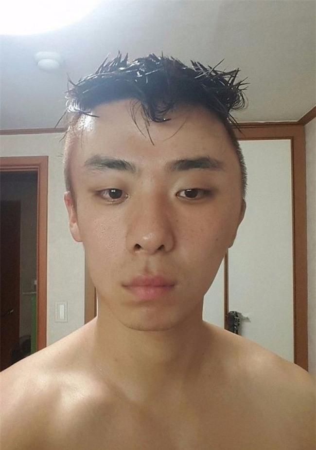 Chết cười với anh chàng Hàn Quốc bị dị ứng thuốc nhuộm tóc, đầu sưng to như quả bóng bay - Ảnh 6.