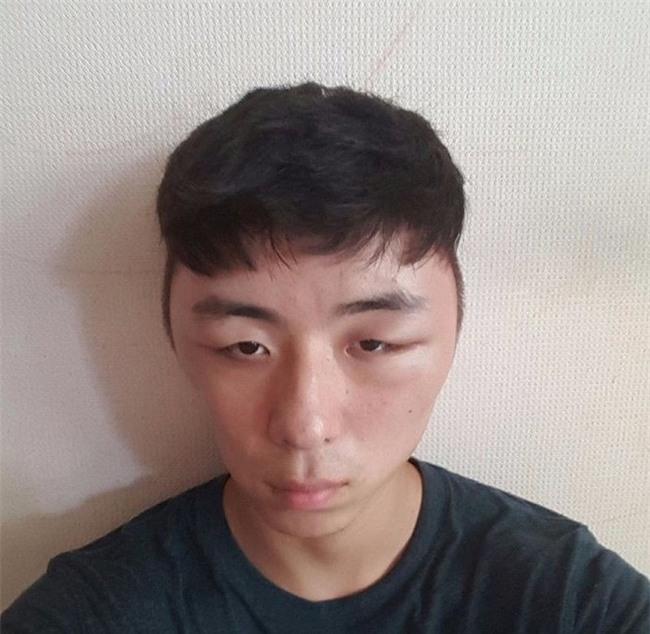 Chết cười với anh chàng Hàn Quốc bị dị ứng thuốc nhuộm tóc, đầu sưng to như quả bóng bay - Ảnh 8.