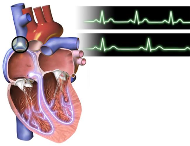 Đây là phao cứu sinh cho người bị huyết áp-4