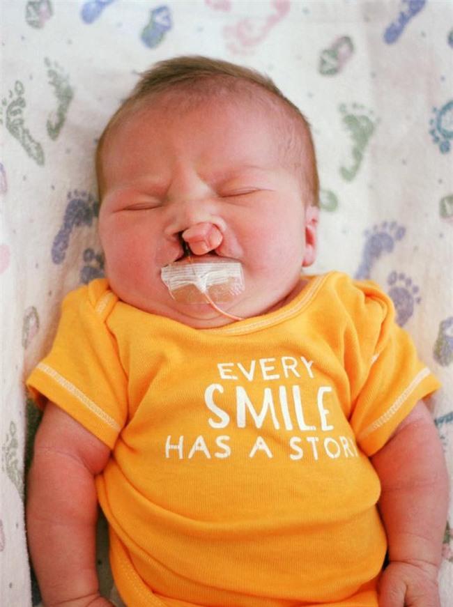 Con bị dị tật nhưng nhất quyết giữ đến cùng, nhiều tháng sau, người mẹ nhận được một thứ khiến cô rơi nước mắt - Ảnh 2.