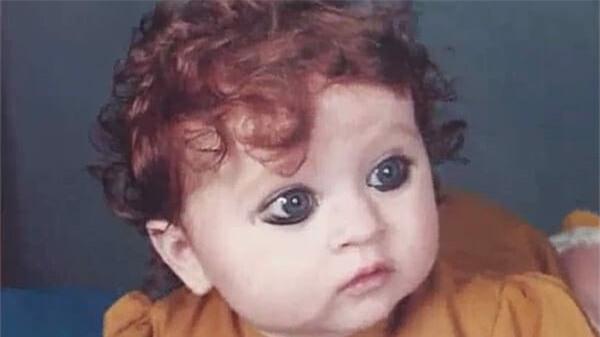 Sinh ra bị coi là quái vật vì ngoại hình khác thường, 20 năm sau ai cũng phải trầm trồ vì sắc đẹp của cô - Ảnh 1.