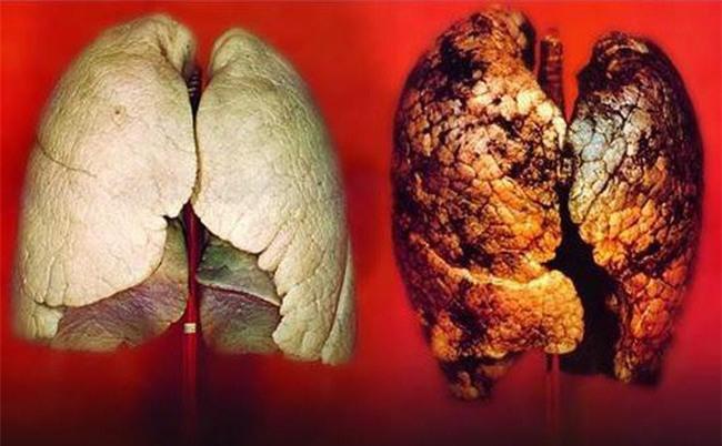 Không hút thuốc lá mà vẫn bị ung thư phổi, chuyên gia xác nhận đây chính là thủ phạm-1