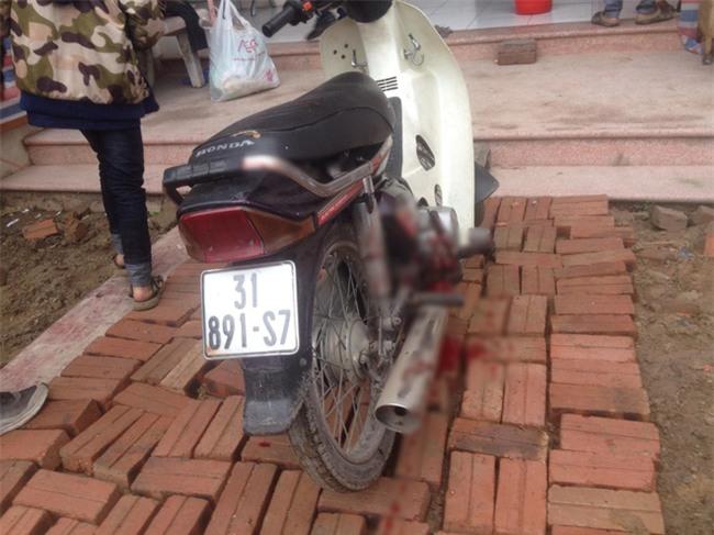 Người đàn ông bị nổ nát bàn tay khi nhặt vỏ đạn sau vụ nổ kinh hoàng ở Bắc Ninh - Ảnh 2.