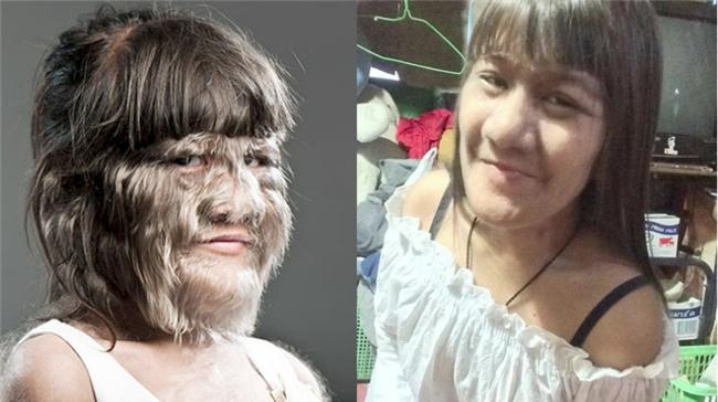 Thái Lan: Cô gái 17 tuổi giữ kỷ lục nhiều lông nhất thế giới khiến mọi người kinh ngạc khi cạo sạch lông mặt! - Ảnh 1.