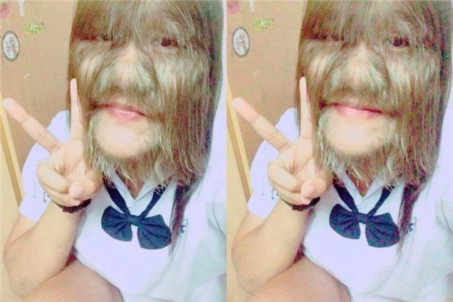 Thái Lan: Cô gái 17 tuổi giữ kỷ lục nhiều lông nhất thế giới khiến mọi người kinh ngạc khi cạo sạch lông mặt! - Ảnh 2.