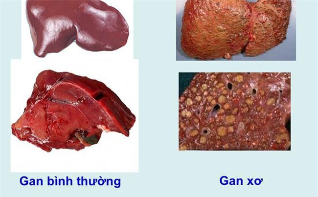 Khi cơ thể cùng lúc xuất hiện 4 dấu hiệu sau, có thể đã là xơ gan giai đoạn cuối-1
