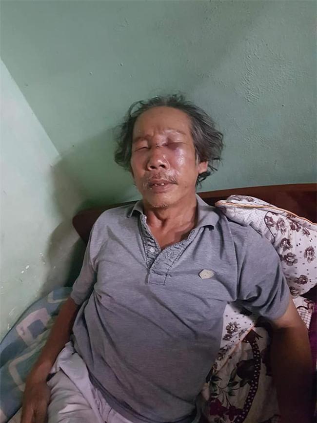 Clip phẫn nộ: Đến thăm con, cụ ông bị bảo vệ chung cư ở Sài Gòn đánh dã man đến gãy sống mũi - Ảnh 2.