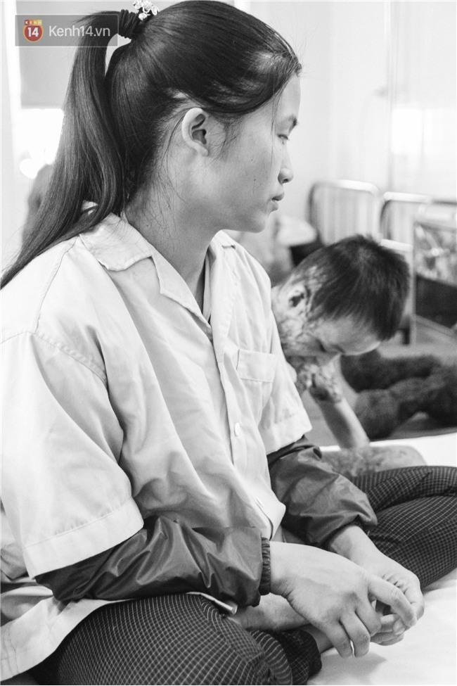 Xót xa những vết bỏng đau đớn trên người bé trai 6 tuổi: Ngày con phải cưa chân là ngày bạn bè vào lớp 1 - Ảnh 2.