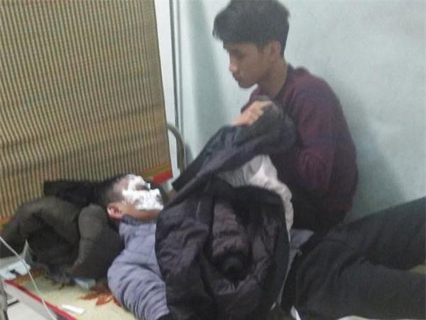 Dùng bật lửa đốt xăng, nam sinh 16 tuổi bị bỏng 2 mắt