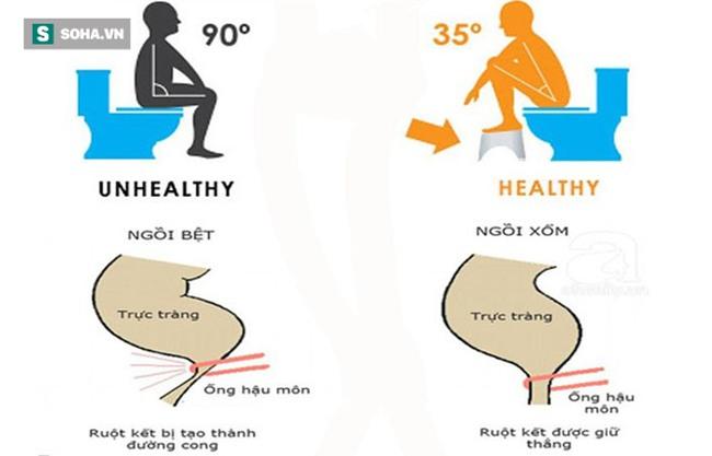 Đây mới là tư thế ngồi khi đi vệ sinh tốt nhất cho sức khoẻ-1