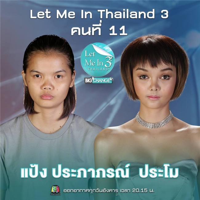 Phẫu thuật thẩm mỹ giống búp bê Barbie, nữ sinh Thái Lan bị cư dân mạng chỉ trích vì gương mặt quái dị - Ảnh 3.