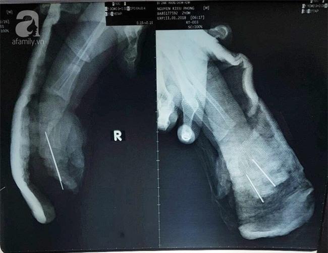 Bình Dương: Bé trai 2 tuổi bị sên xe máy quấn đứt lìa bàn tay - Ảnh 3.