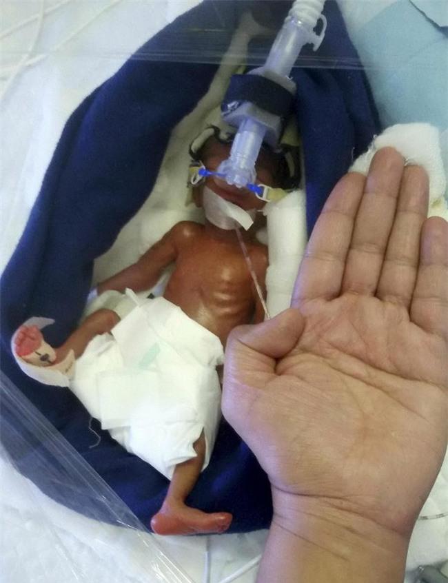 Bé gái sinh ra nhỏ xíu chưa bằng bàn tay, bác sĩ không dám tiên lượng điều gì thì 6 tháng điều kỳ diệu đã xảy ra - Ảnh 3.