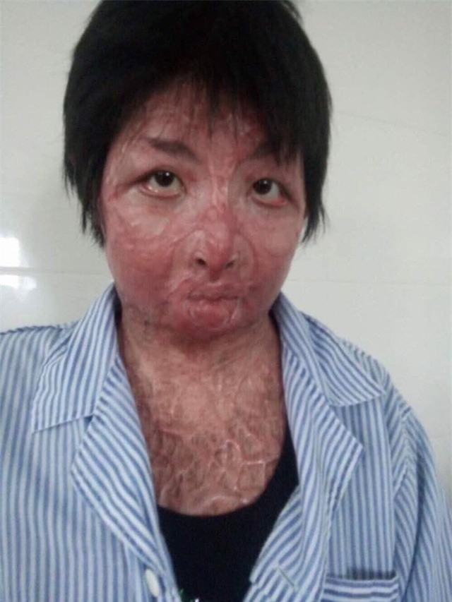 Cuộc sống tươi mới của người phụ nữ xinh đẹp bị chồng tẩm xăng đốt - Ảnh 2.