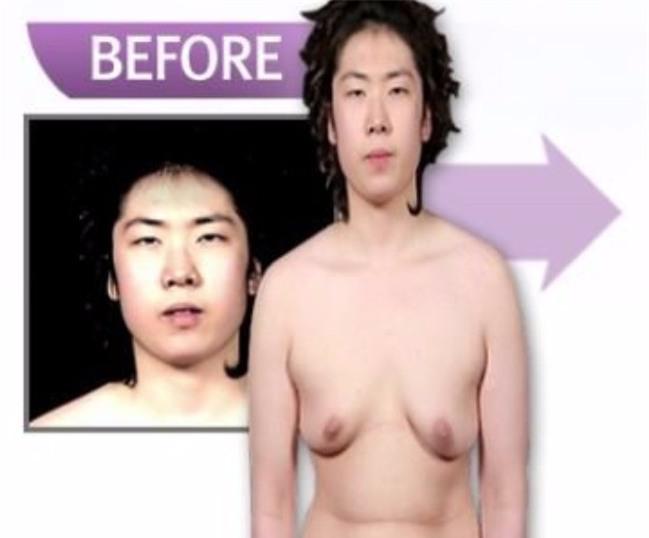 Từng bị dè bỉu vì vẻ ngoài xấu xí, cuộc đời của những người này đã hoàn toàn thay đổi nhờ phẫu thuật thẩm mỹ - Ảnh 7.