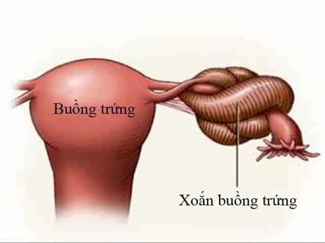 xoan buong trung benh phu khoa anh huong den sinh san cua phu nu - 1