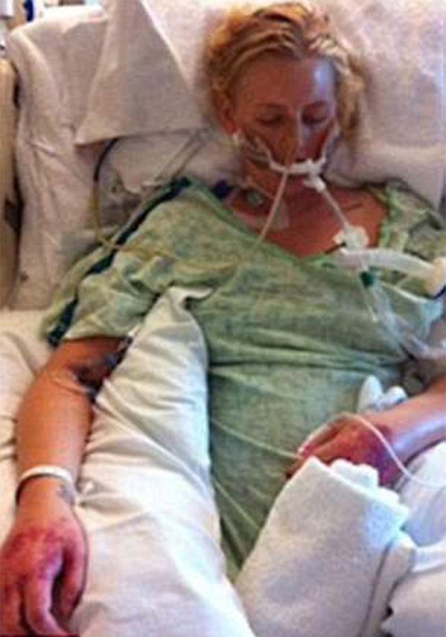 Sử dụng băng vệ sinh sai cách, người phụ nữ suýt nữa mất mạng, phải cắt bỏ cả 2 chân vì đau đớn - Ảnh 4.