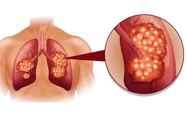 Ho như thế nào  thì bạn nên đi khám để phòng ngừa bệnh ung thư phổi?-2