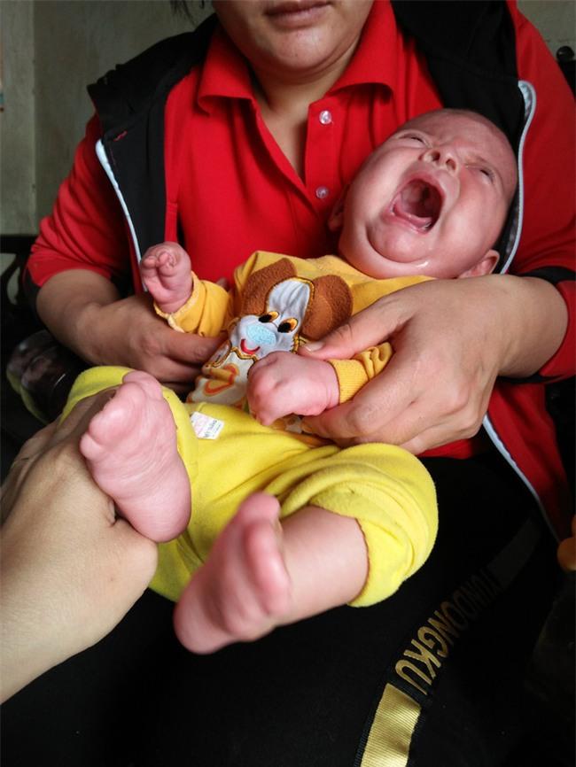 Con mới sinh đã mắc căn bệnh hiếm gặp ngặt nghèo, bố mẹ suốt ngày thay nhau bế vì con nằm xuống là tắt thở - Ảnh 1.