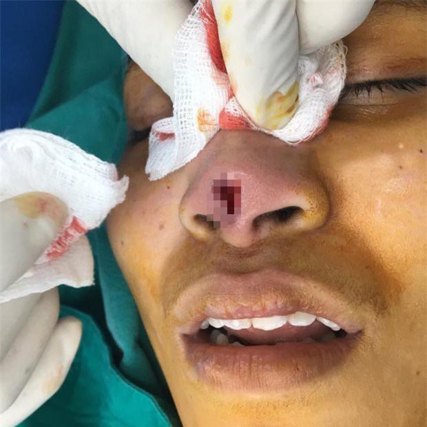 Thêm một cô gái đi phẫu thuật nâng mũi nhưng tham rẻ nên nhận hậu quả đau đớn, rách mũi để lộ cả silicon - Ảnh 3.