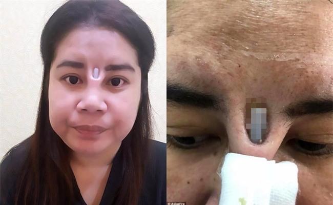 Thêm một cô gái đi phẫu thuật nâng mũi nhưng tham rẻ nên nhận hậu quả đau đớn, rách mũi để lộ cả silicon - Ảnh 4.