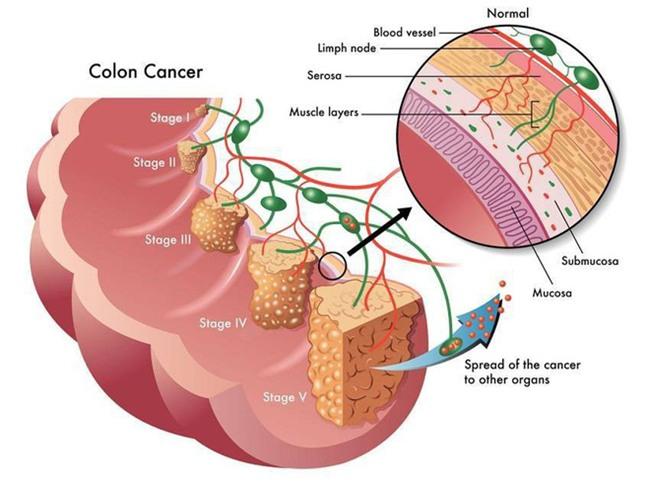 95% ca ung thư đại tràng liên quan đến nguyên nhân này-1