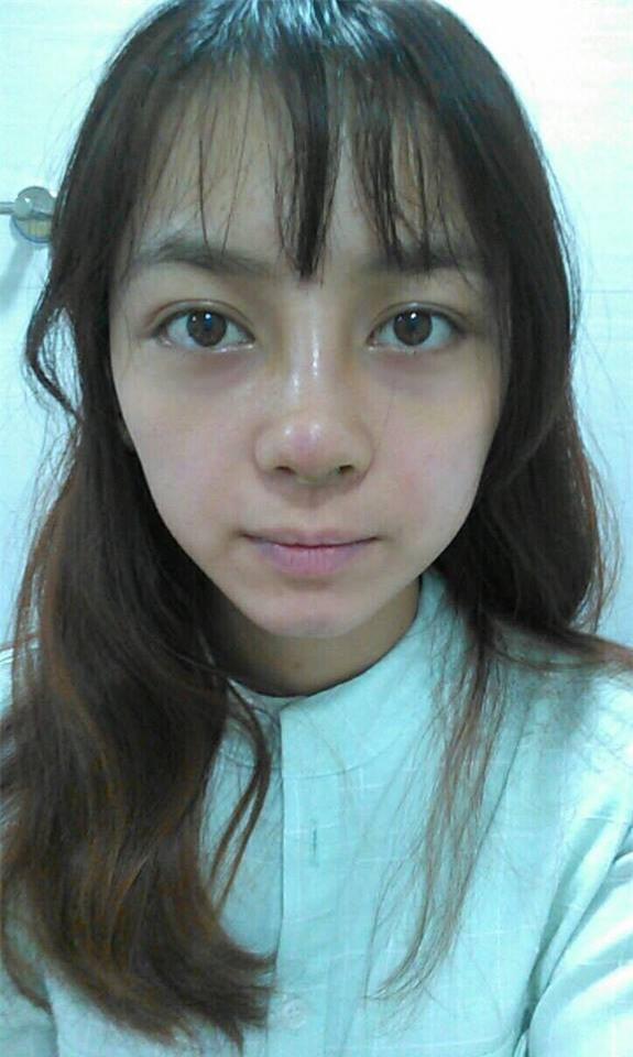 Trải nghiệm kinh hoàng của cô gái trẻ lần đầu nâng mũi sẽ khiến nhiều người nghĩ lại nếu định dao kéo - Ảnh 6.