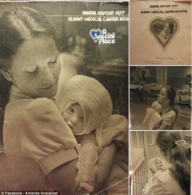 Bé gái bị bỏng được nữ y tá xinh đẹp cứu sống, 38 năm sau điều bất ngờ xảy ra khiến ai cũng nghẹn ngào - Ảnh 2.