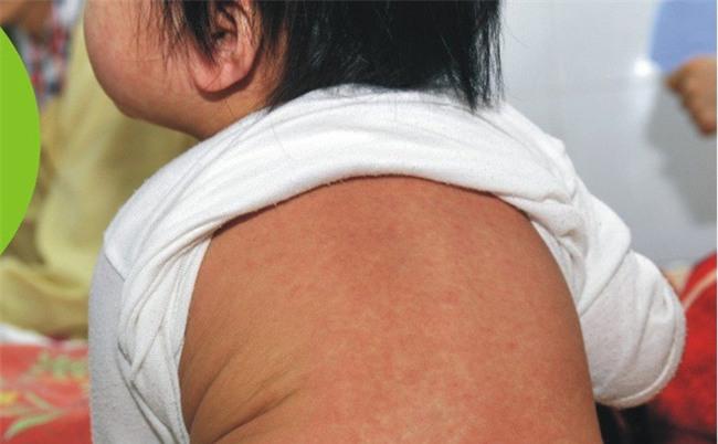Dịch sởi bùng phát ở nhiều nơi có tỷ lệ tiêm phòng sởi thấp, Bộ Y tế khuyến cáo người dân