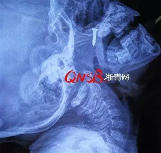 Con trai kêu đau ở mũi, cứ nghĩ con chỉ bị viêm nhẹ cho đến khi xem phim chụp X-quang, bà mẹ mới hoảng sợ bật khóc - Ảnh 1.