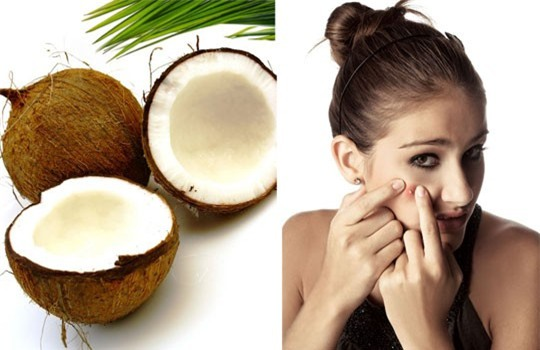 Cách chăm sóc da bằng dầu dừa tại nhà an toàn và hiệu quả nhất - Ảnh 1.