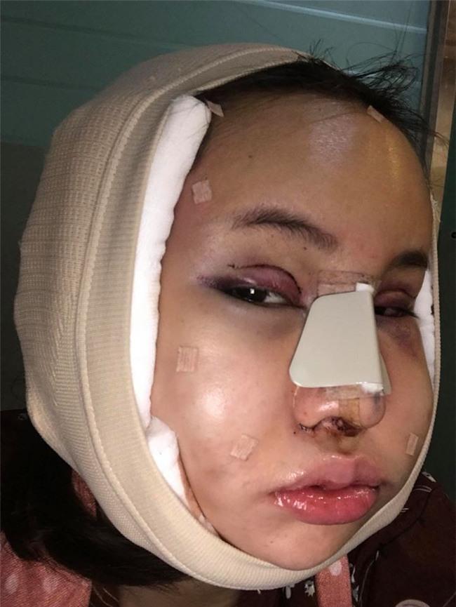 Hot Facebooker Thái Lan bật mí quá trình phẫu thuật thẩm mỹ đau đớn nhưng trả về kết quả đẹp xuất sắc - Ảnh 1.