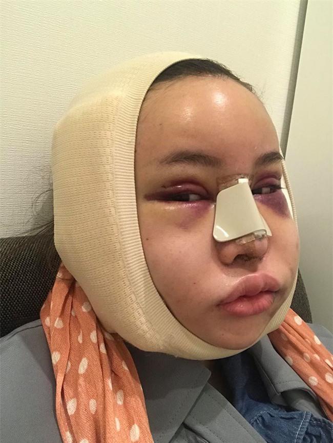 """Hot Facebooker Thái Lan """"bật mí"""" quá trình phẫu thuật thẩm mỹ đau đớn nhưng trả về kết quả đẹp xuất sắc - Ảnh 2."""
