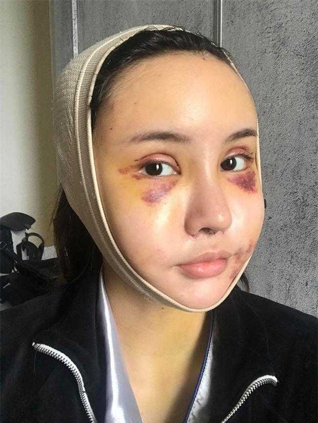 """Hot Facebooker Thái Lan """"bật mí"""" quá trình phẫu thuật thẩm mỹ đau đớn nhưng trả về kết quả đẹp xuất sắc - Ảnh 4."""